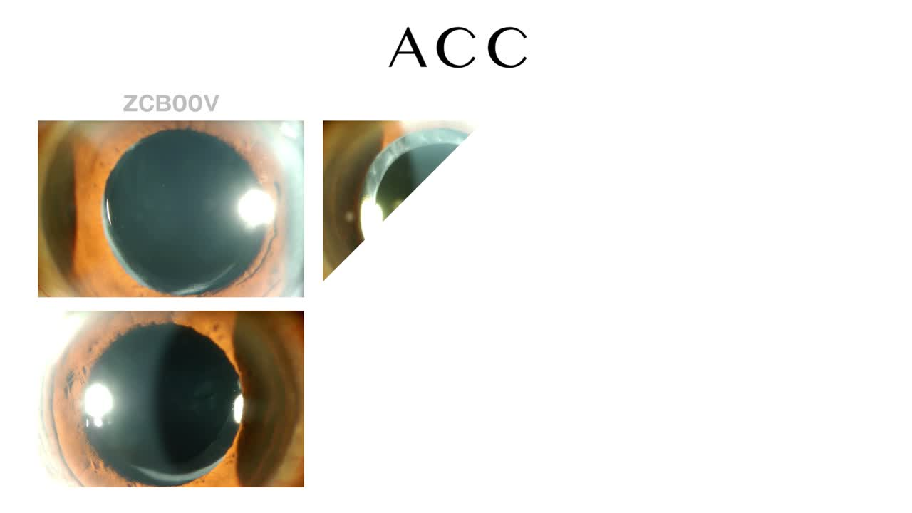 Prevention of Anterior Capsulorhexis Contraction