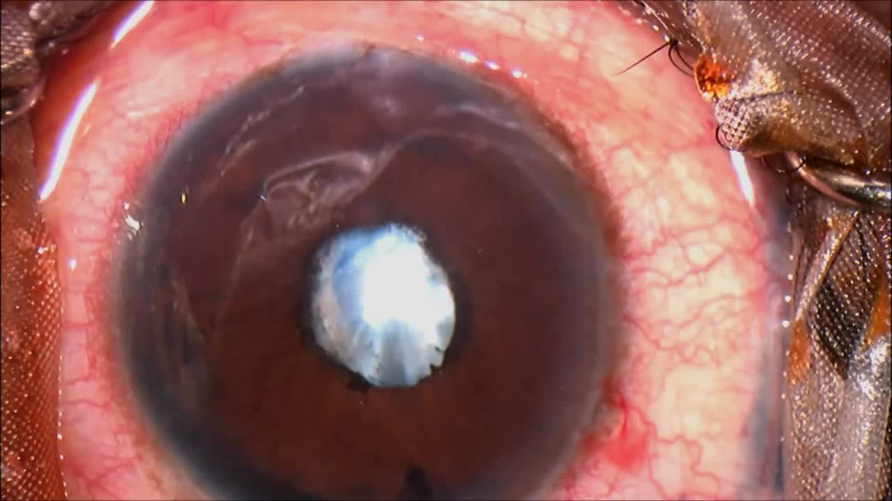 Uveitis with Peripupillary Membranectomy