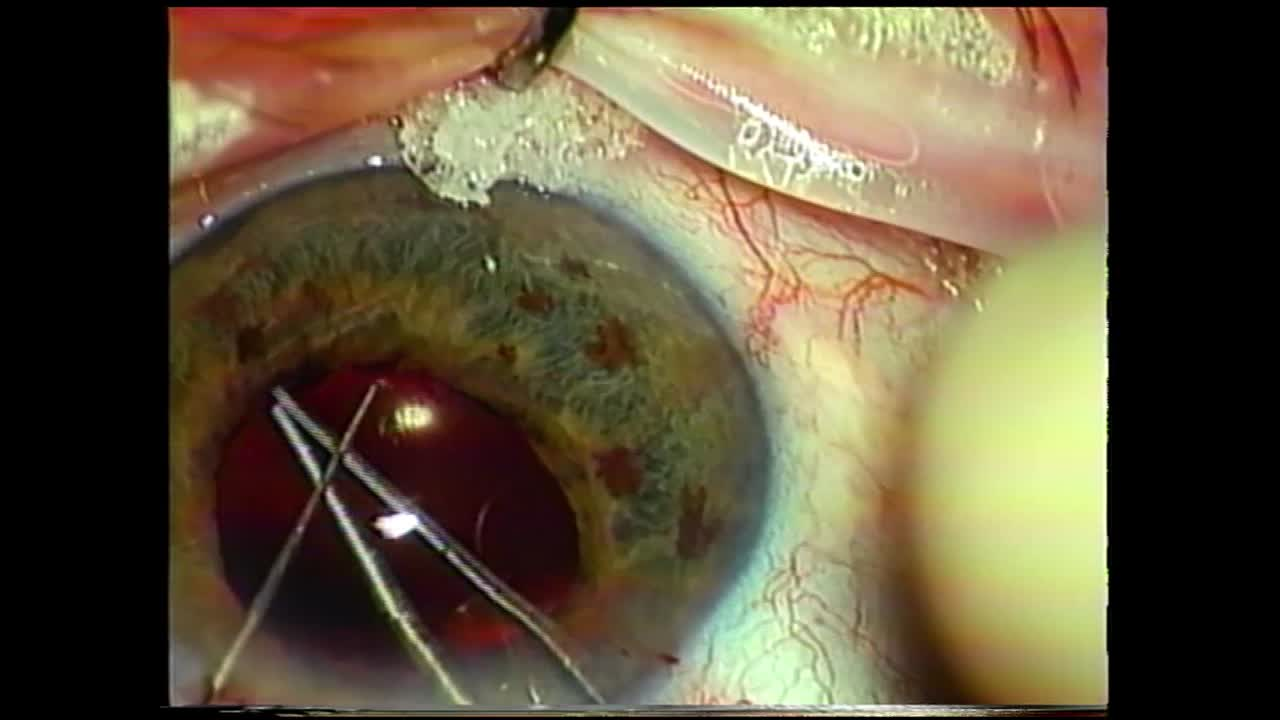 My First Peripupillary Membranectomy