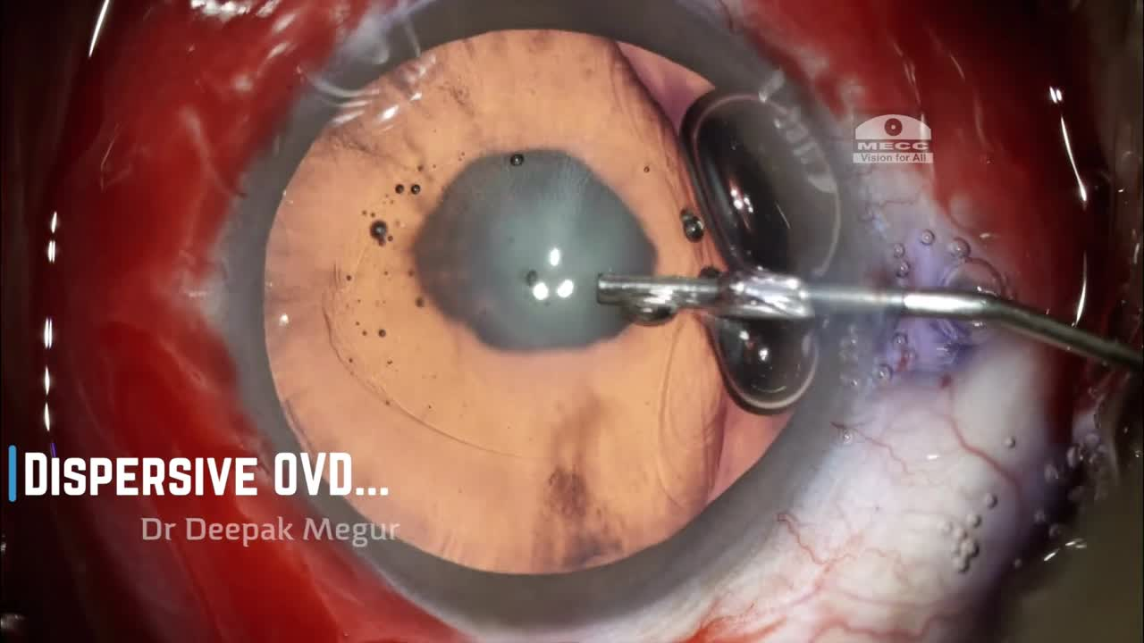 Posterior Polar Cataract:  4 Situations