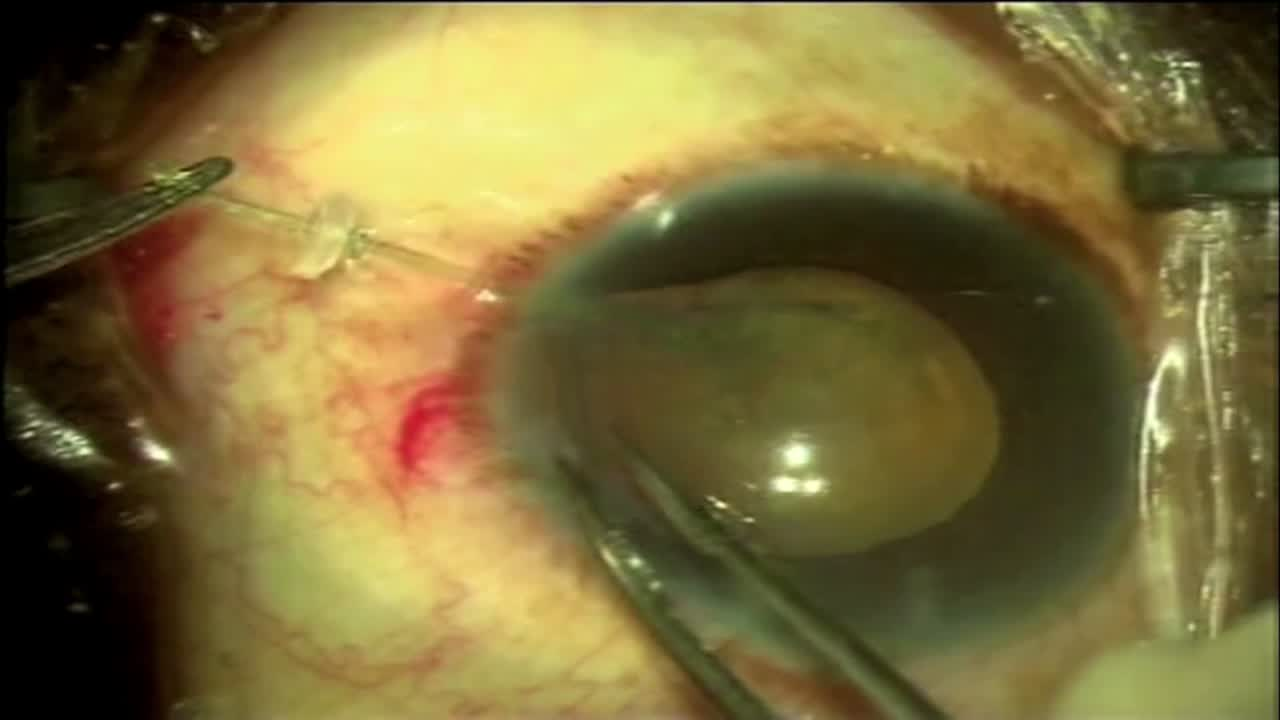 Coloboma with PC Tear Rescue